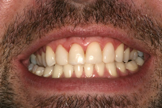 teeth bleaching nottingham